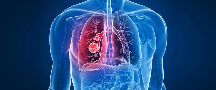 Secuenciación y/o Mutaciones del Gen CFTR (Fibrosis Quística)
